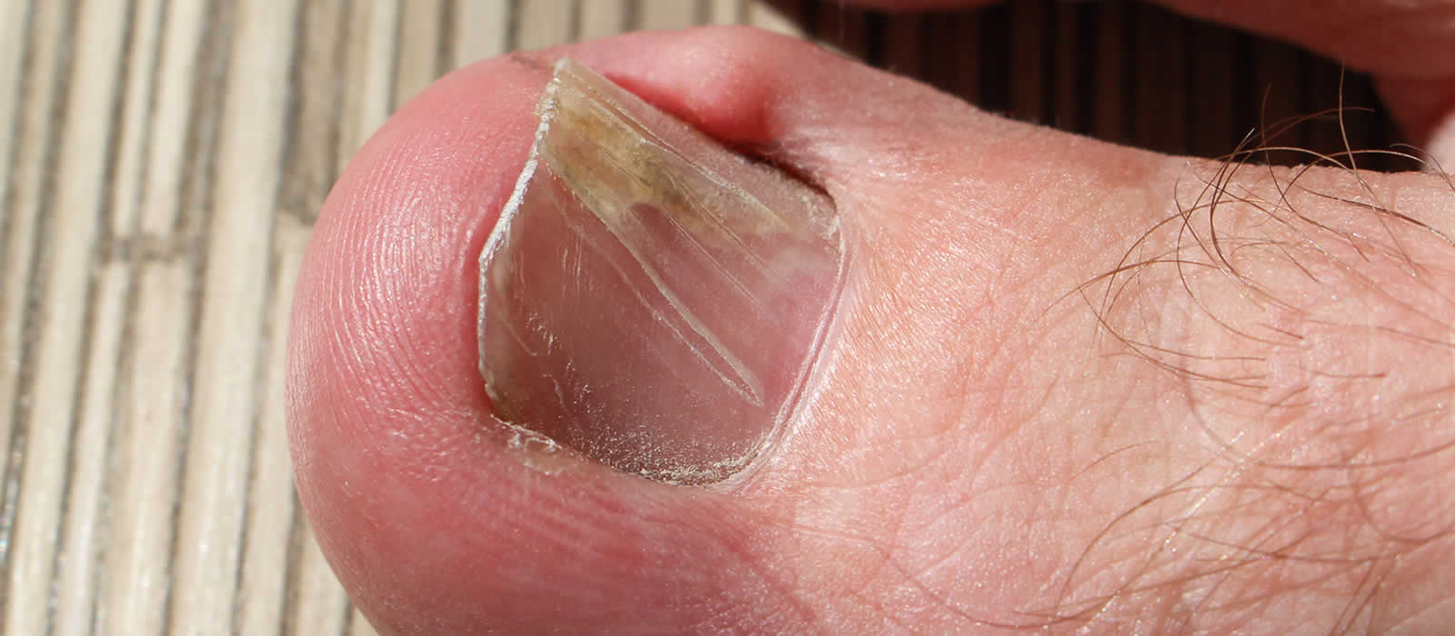 Ingrown Toenail: Symptoms, Causes, and Treatments | Dr. Geller