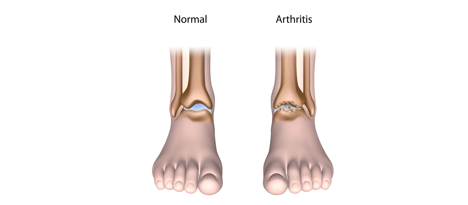 Medication For Osteoarthritis Of The Knee