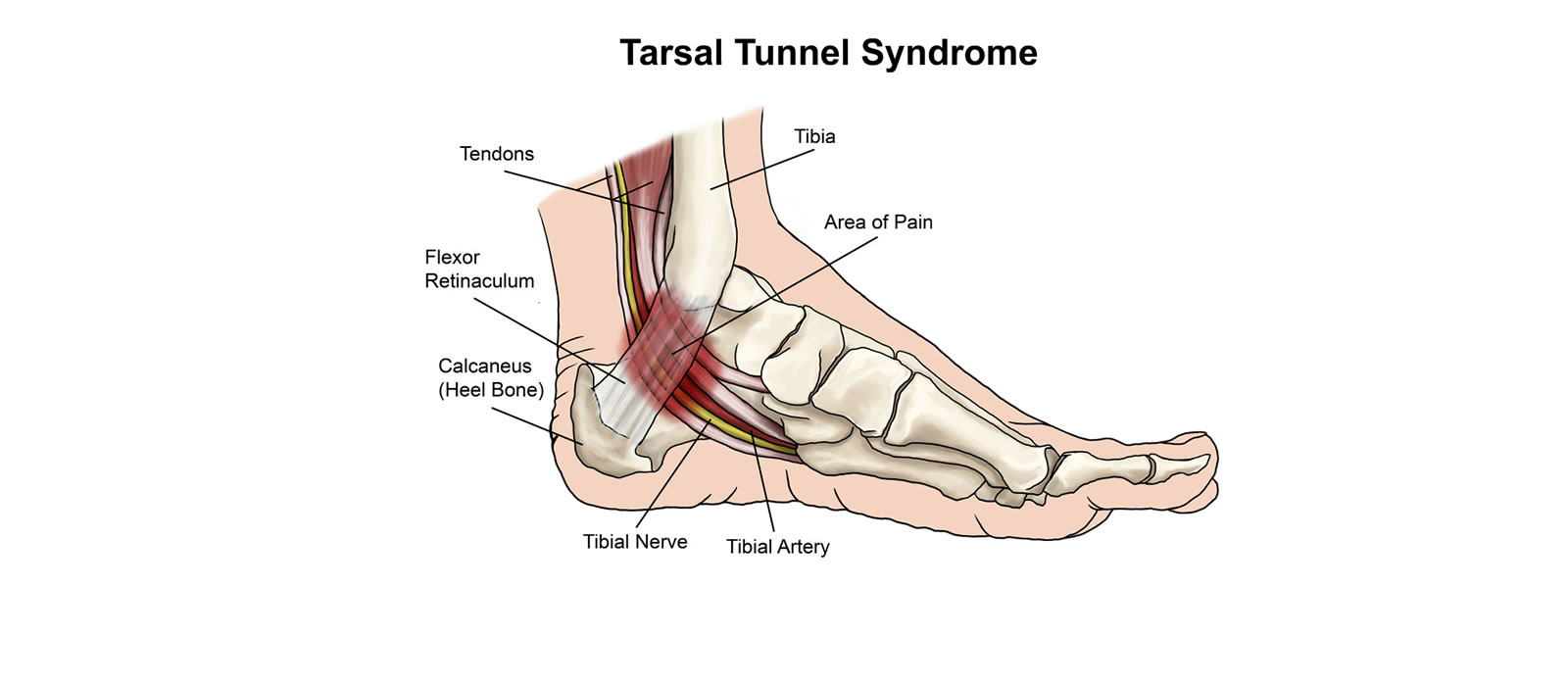 Tarsal Tunnel Syndrome: Symptoms, Causes, and Treatments ... Tarsal