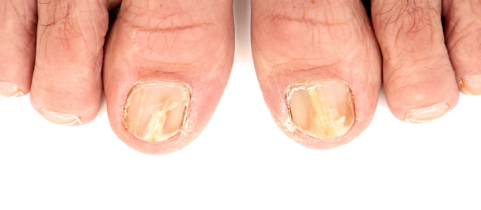 Toenail Fungus: Causes, Symptoms, and Treatments | Dr. Geller